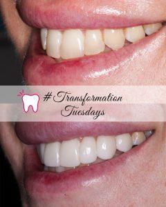 familyone dental pacific pines gold coast smile makeover cover veneers invisalign porcelain